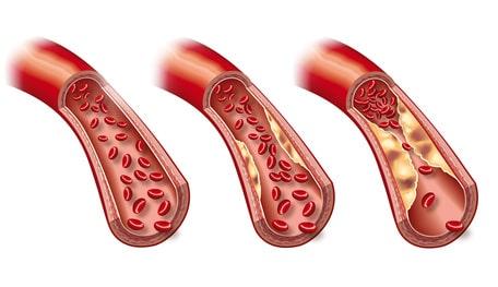 сосуды забитые холестерином