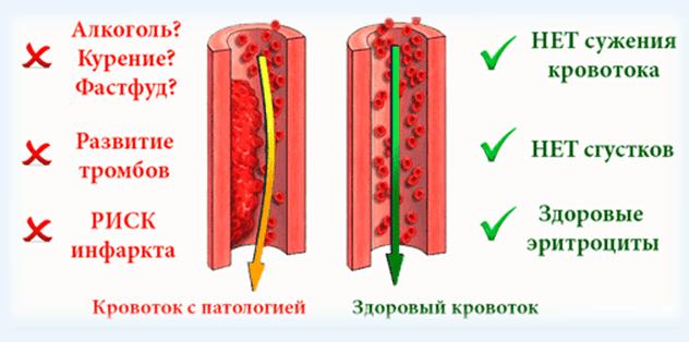 разжижать кровь