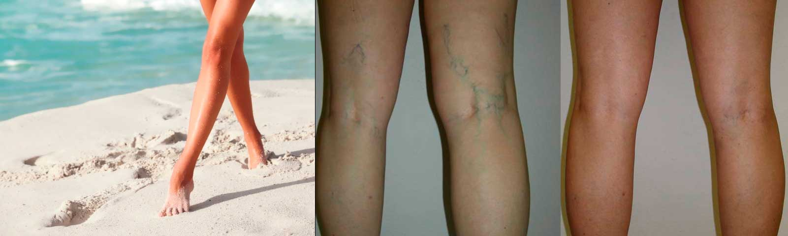 Чистые ноги без варикоза