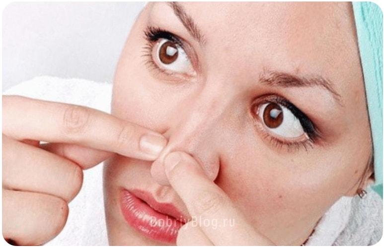Как убрать черные точки на лице - очищение дерматологическими препаратами.