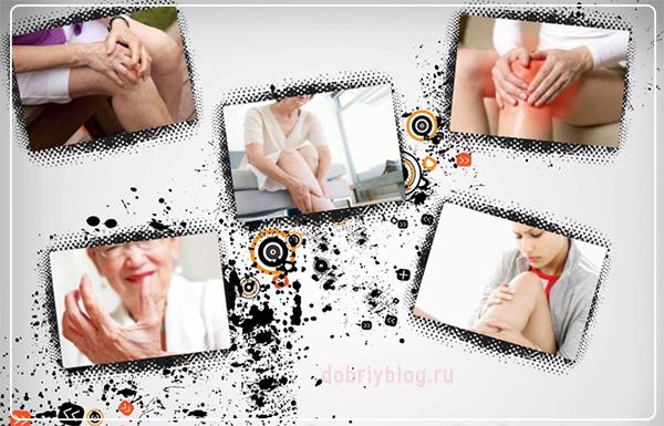 Симптомы артрита коленного сустава у женщин